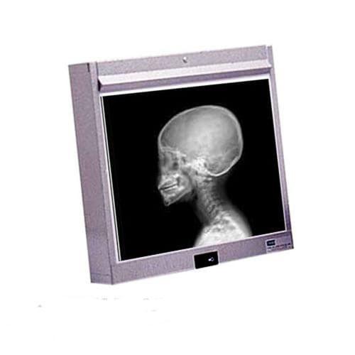 Negatoscópio Odontológico de Parede - LGA