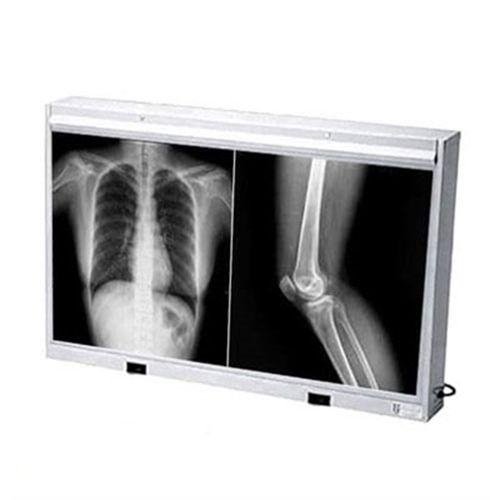 Negatoscópio Tomográfico de Metal 2 Corpos - Biotron