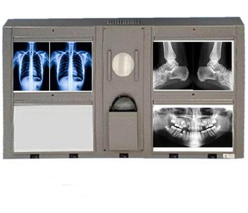 Negatoscópio Mamográfico 4 Corpos para 08 Filmes – LGA
