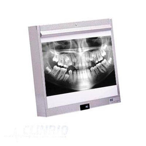 Negatoscópio Odontológico de Mesa - LGA