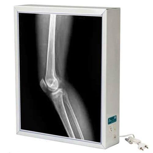 Negatoscópio Tomográfico de Metal 1 Corpo - Biotron